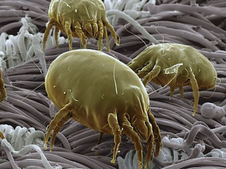1324084120-dust+mite+3.jpg-scaled